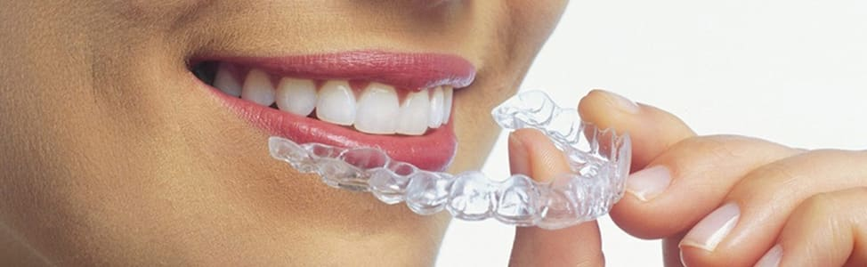 Invisalign Clear Aligners from Fort St. John Dental Clinic, BC